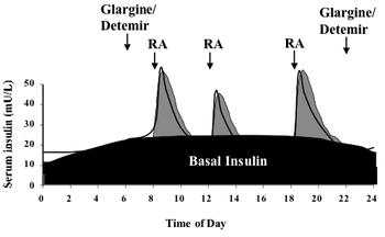 Bazál-bolus intenzifikovaný režim podávání inzulínu: dvěma dávkami pomalého inzulínu se uchovává bazální hladina inzulínu a před jídlem je doplněna o bolusové dávky inzulínu