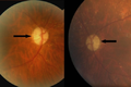 OPA1 optic disc atrophy.png