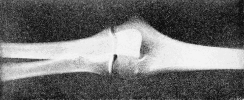 PSM V56 D0682 X ray photo of an elbow joint.png