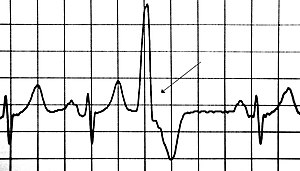 premature ventricular contraction wikipedia