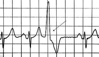 Premature ventricular contraction Human disease