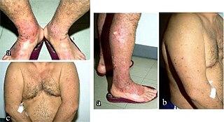 Prurigo nodularis Medical condition