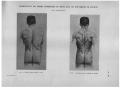 Richer - Anatomie artistique, 2 p. 108.png