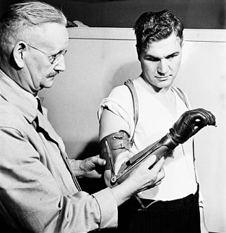 Royal Canadian Army Service Corps - Private Ed Gerris of the Royal Canadian Army Service Corps, seen here with Principal Eccles of Shaw Business Schools, is using an artificial hand