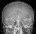 Sinus frontalis X-ray.png