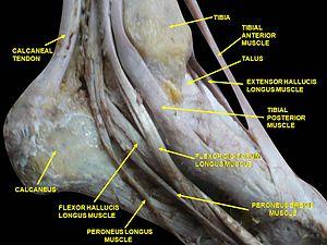 Extensor hallucis longus muscle - Image: Slide 2cece