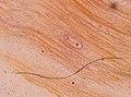 Trichinella spiralis (YPM IZ 093416).jpeg