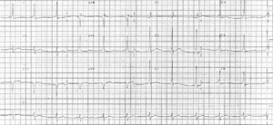A 12 lead EKG demonstrating Wolff-Parkinson-Wh...