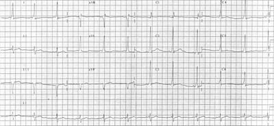 12-odprowadzeniowe EKG osoby z