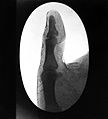 X-ray photograpf of lord Lister's thumb. Wellcome L0018631.jpg