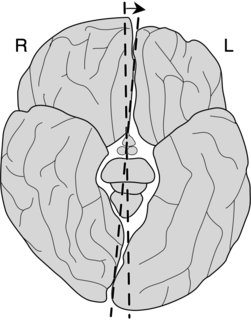 Yakovlevian torque the tendency of the right side of the human brain to be warped slightly forward relative to the left and the left side of the human brain to be warped slightly backward relative to the right