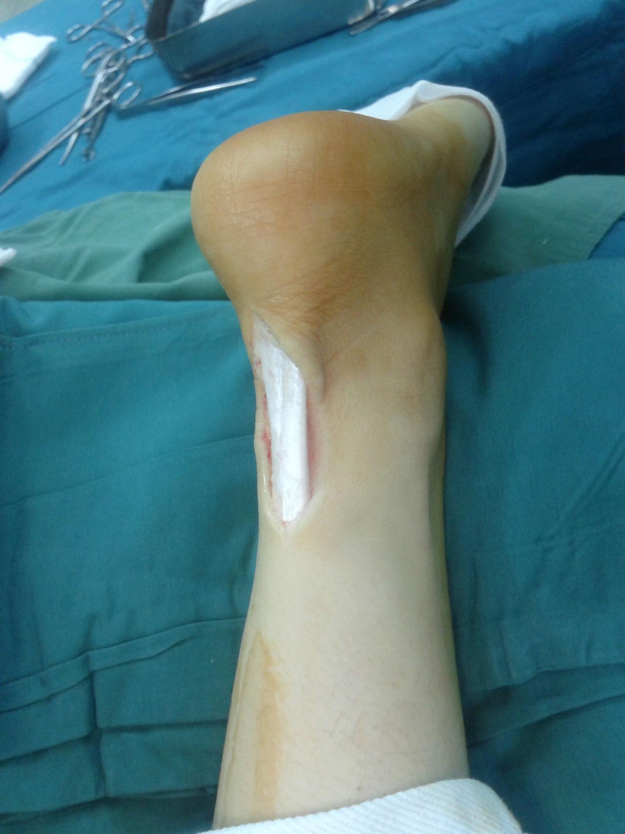 Die Behandlung bei einem kompletten Abriss der Achillessehne sieht bei jüngeren und aktiven älteren Menschen eine OP vor.