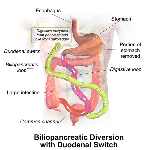 Biliopancreatic Diversion