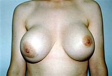 Breast Implant Complication Photos 72