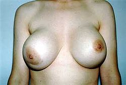 High grade (Baker IV) capsular contracture in the right breast around a subglandular gel implant.