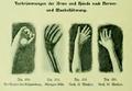 Die Frau als Hausärztin (1911) 250 253 Verkrümmungen der Arme und Hände nach Nerven- und Muskellähmung.png