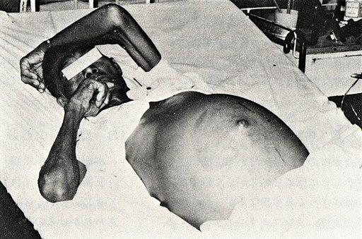 Edema abdomen by Schistosomiasis Japonica