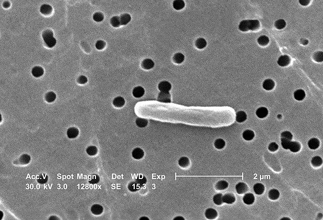 Escherichia coli - tyčinkovitá baktéria žijúca v hrubom čreve