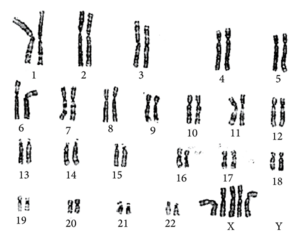 Foetal karyotype demonstrating pentasomy X.png