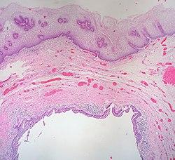 Vaginal epithelium - Wikipedia