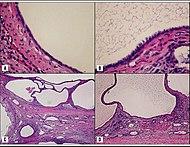 Histopathology of cystic nephroma.jpg