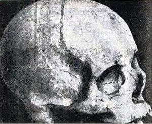 Keppetipola Disawe - Keppetipola Disawe's Skull.