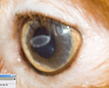 Lilly's Cornea.png