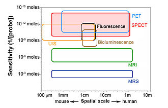 Preclinical SPECT - The matrix of medical imaging and comparative performance of different imaging modalities