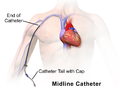 Midline Catheter.png