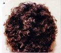 Naxos Disease Hair 01.jpg