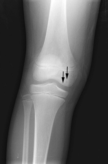 OCD Knee WalterReed-1