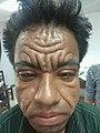 Pachydermoperiosteosis image.jpg
