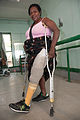 Patient Mukaro Sauna from Dauru walks for the first time in 11 years at the National Orthotic & Prosthetic Services (NOPS), Port Moresby General Hospital, PNG. (10712681034).jpg