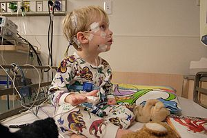 English: A pediatric patient prepared for a po...