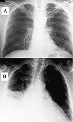 de2b795169 Az ábra felső részén egészséges, alsó részén gyulladásos tüdő röntgenképe