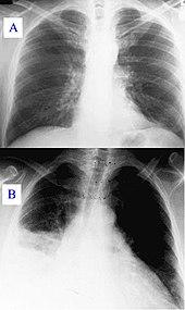 Zapalenie płuc widoczne na zdjęciu klatki piersiowej.  A: Prawidłowy obraz. B: Nieprawidłowy obraz z zacienieniem w prawym płucu z powodu zapalenia płuc.