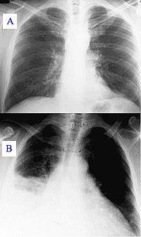 Keuhkoahtaumatauti Happisaturaatio