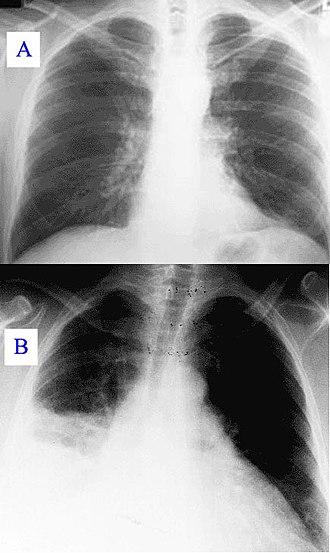 Hospital-acquired pneumonia - Image: Pneumonia x ray