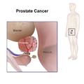 Prostate Cancer.png