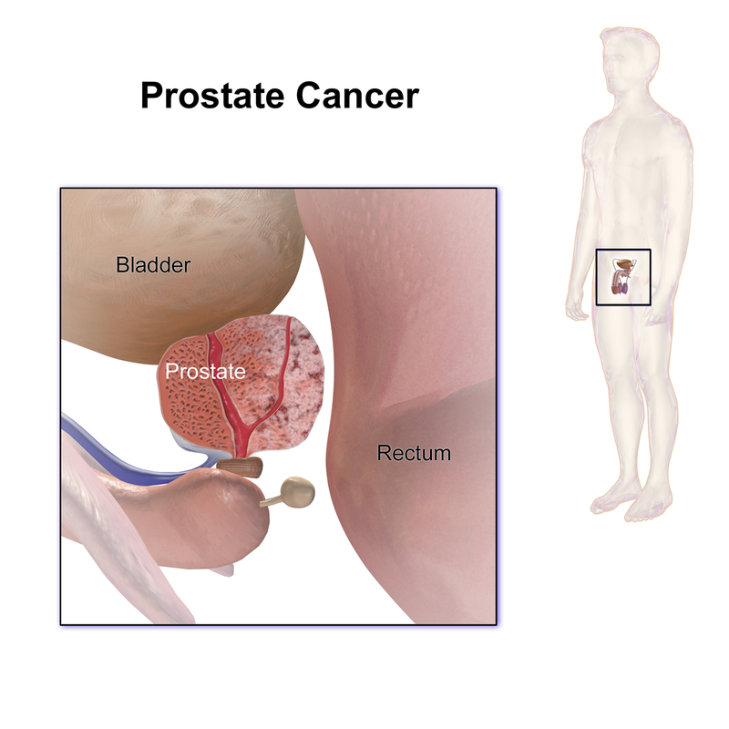 Prostate Cancer.png