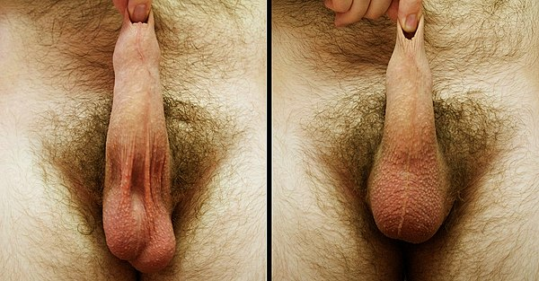White Bumps on Scrotal Sac, Penile
