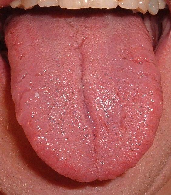 Tongue.agr