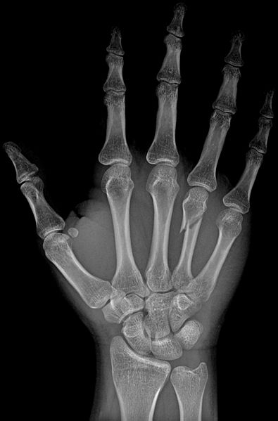 What is a Metacarpal Fracture and how to treat it?