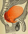 A non-surgical treatise on diseases of the prostate gland and adnexa (1906) (14779579224).jpg