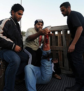 Death of Abdulredha Buhmaid - Protester injured in his leg being carried in a civilian car