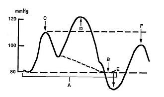 Intra-aortic balloon pump - Aortic pressure curve in the presence of an intra-aortic balloon pump