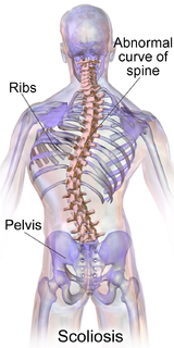 Scoliosis spinal medical condition