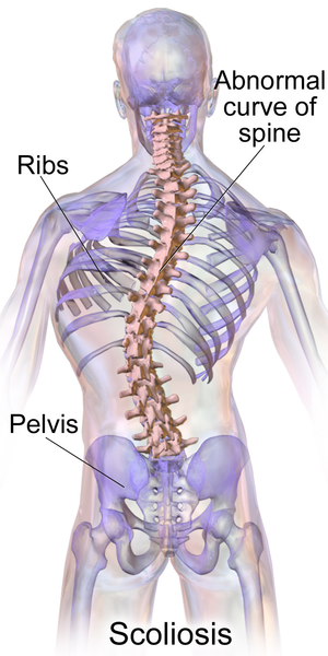 Blausen 0785 Scoliosis 01.png