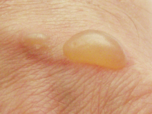 Blister from burns (top).png