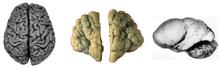 Полимикрогирия головного мозга